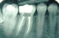 Gums n Braces Dental @ 9871465422