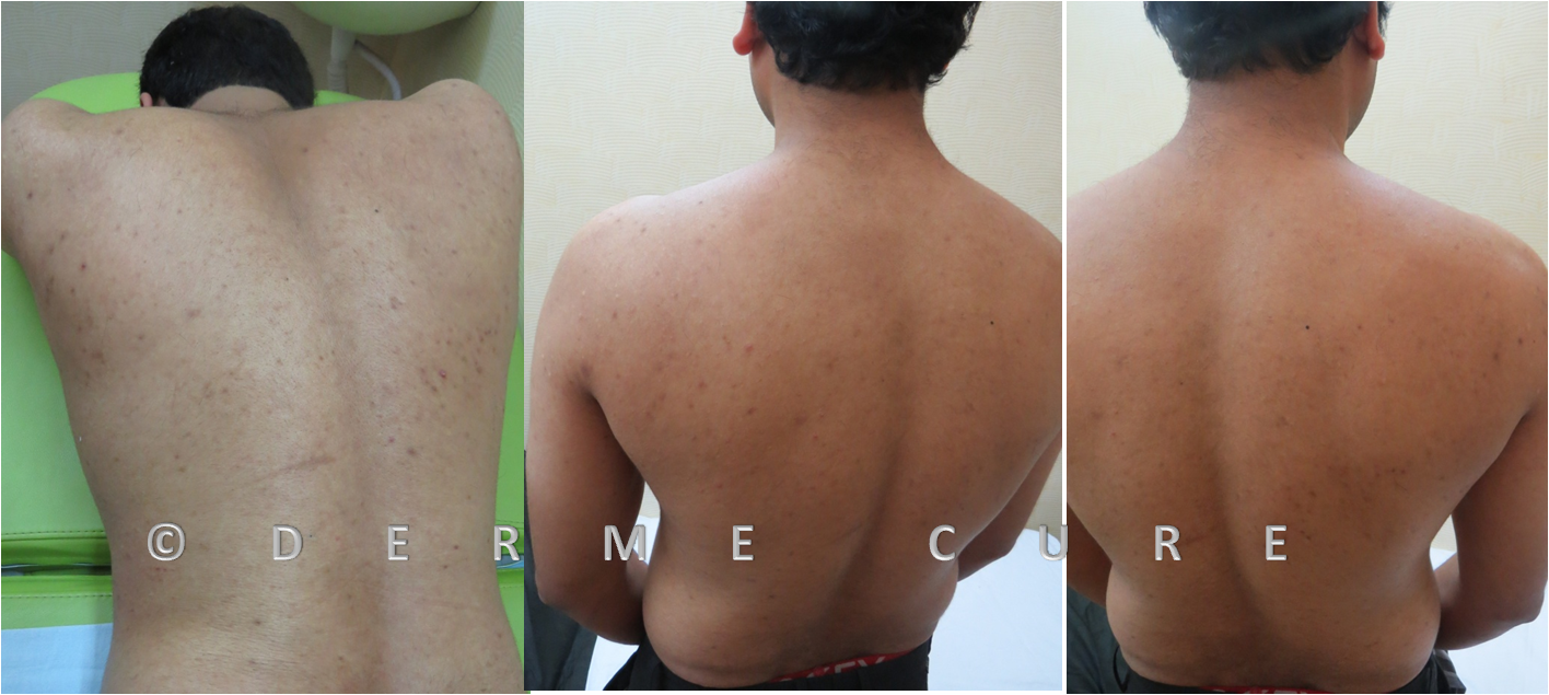 Derme Cure Skin & Cosmetic Clinic Call Us: 8220558899