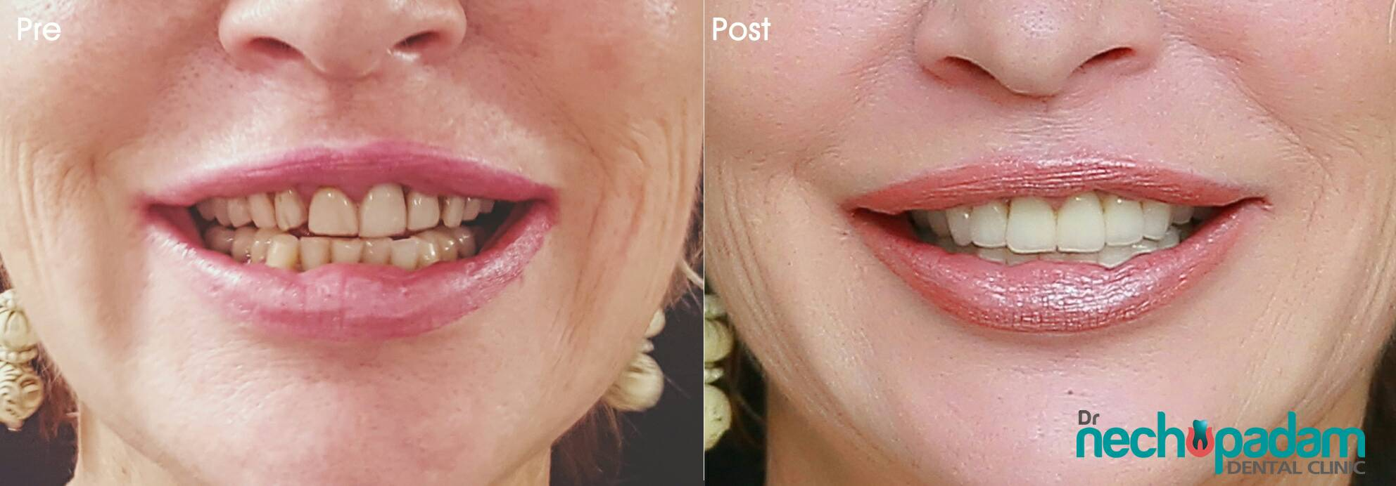 Dental clinic Clear Aligners, Invisalign and Hollywood Smiles
