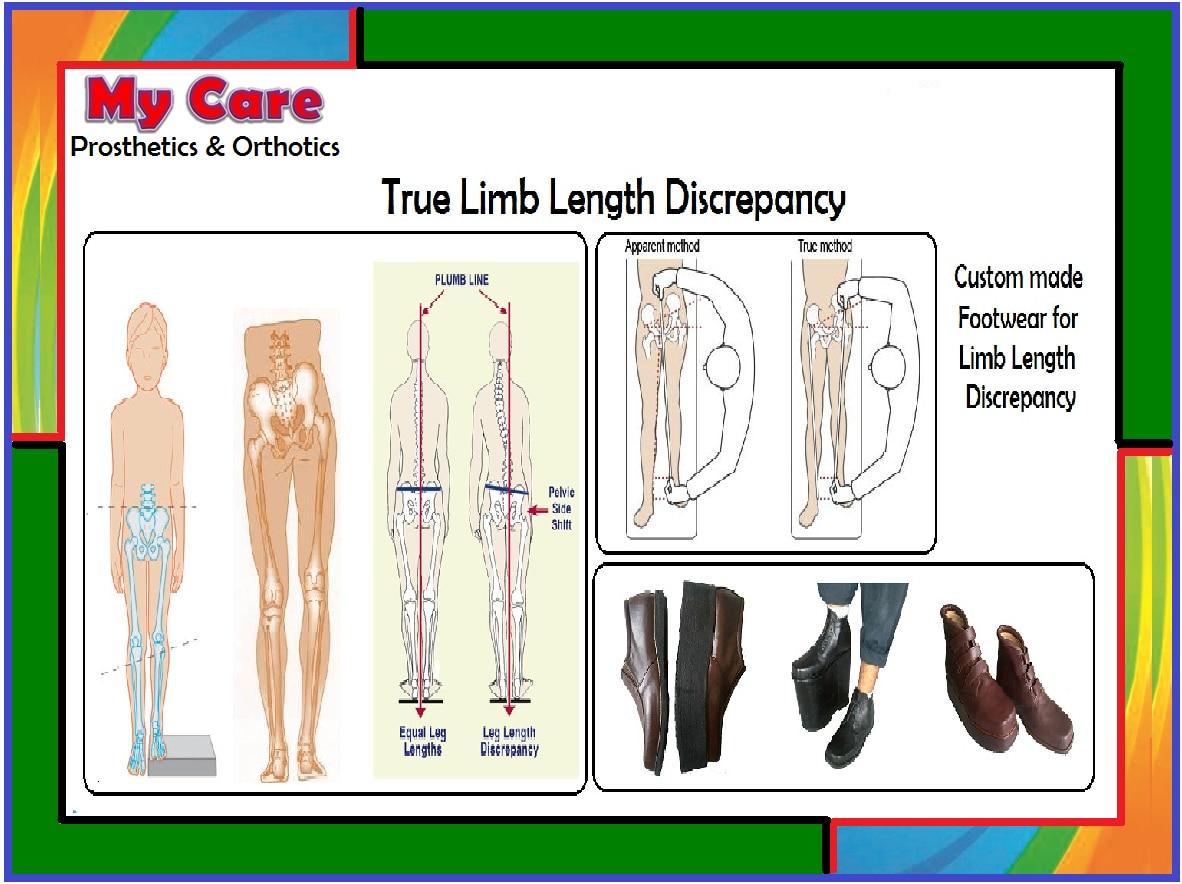 My Care Prosthetics and Orthotics