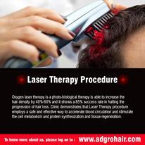 Hair Regrowth Treatments In Chennai - Ad Gro Hair clinic