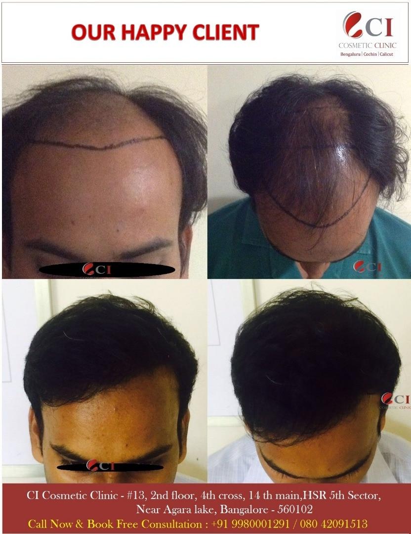 CI Hair Clinic Bangalore
