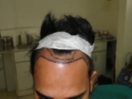 Hair transplant in Delhi.