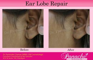 Dr Parminder Chaman Panache Skin Hair and Laser Clinic