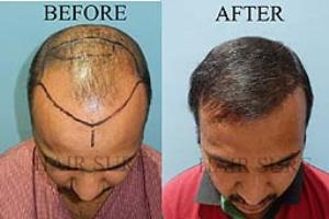 Hair Sure Hair Transplant Centre