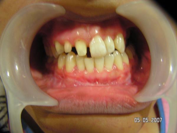 Nidaan Dental Clinic Indore