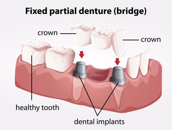 Dentcure Dental Clinic