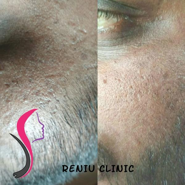 Reniu Hair Transplant And Skin Clinic