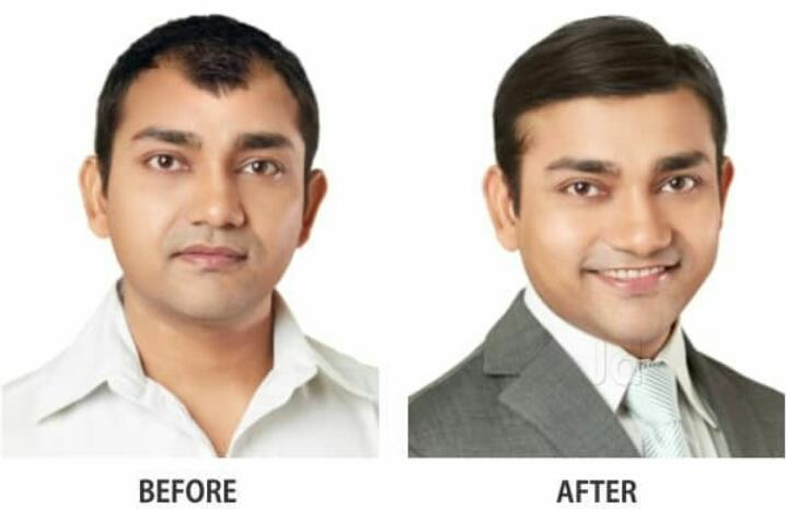Hair Apparent Clinic Bangalore India
